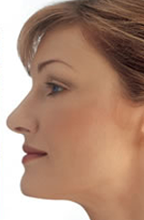 woman chin after aqualyx injection
