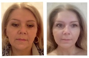 PDO thread lift treatment before & after images