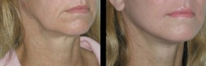 PDO thread lift neck before & after