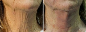 PDO thread lift neck/chin before & after